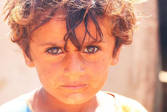 Yemen : 4 ans de guerre !